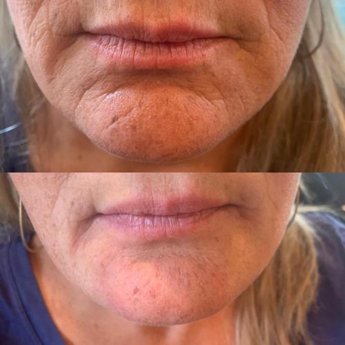 Lip & Chin Lines