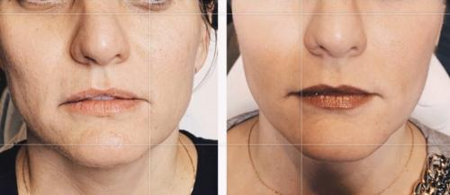 Cheek Lift & Jaw Contour